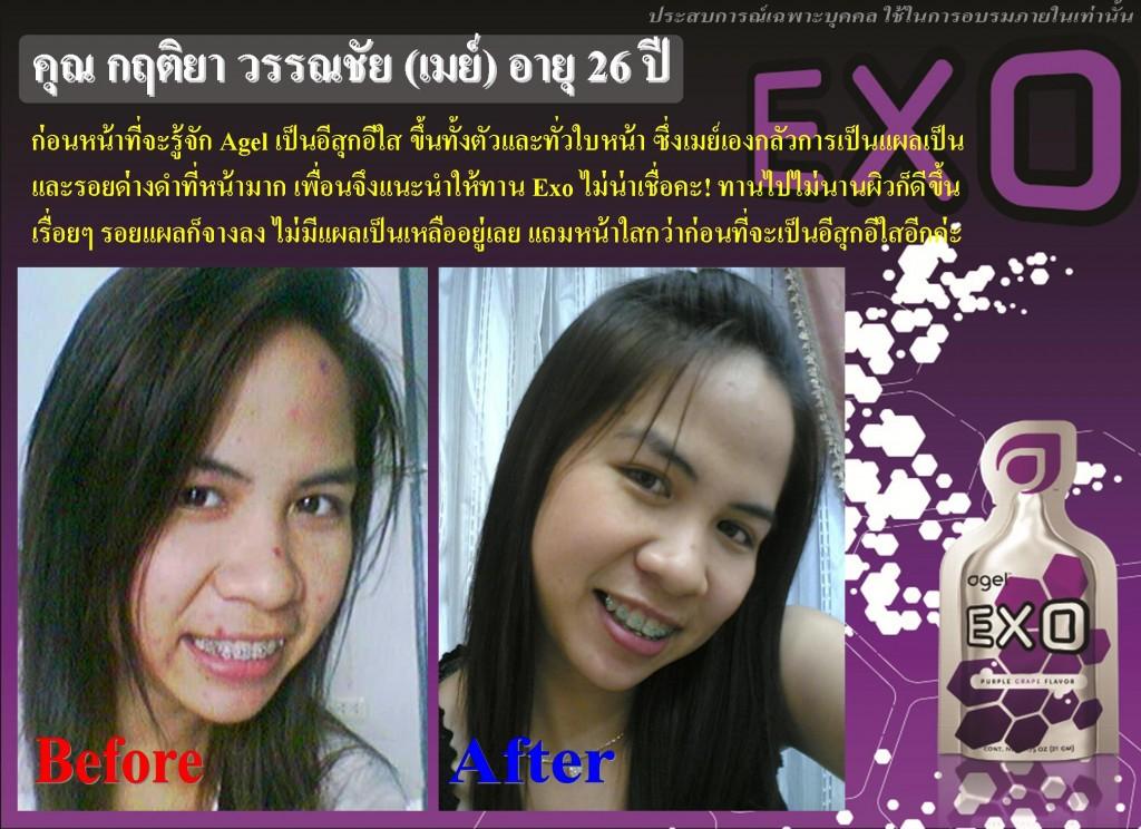 EXO 15Day 013