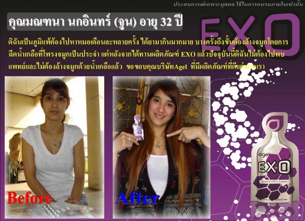 EXO 15Day 014